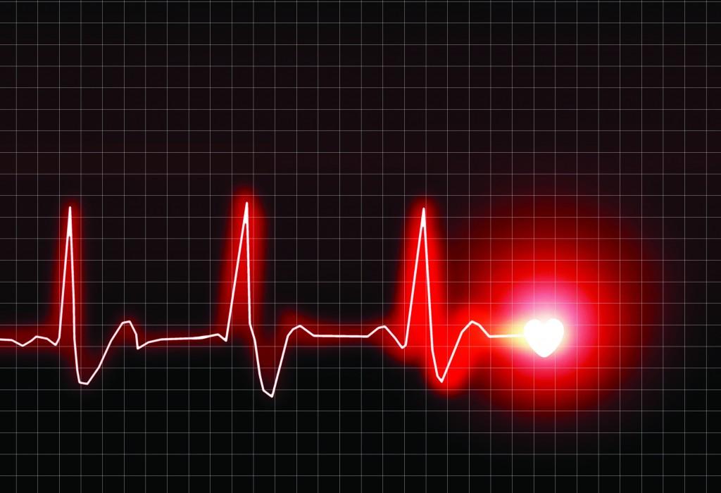 Как сделать так чтобы остановилось сердце 550